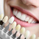 あんなに黄色かった歯が…。歯医者さんの方法を試したらあっという間に!!